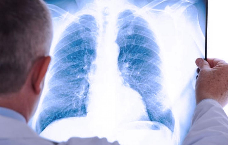 pneumonie pierdere)